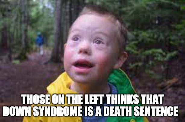 Sick Writer For Newsweek Says Less Abortion Will Only Save Down Syndrome Children